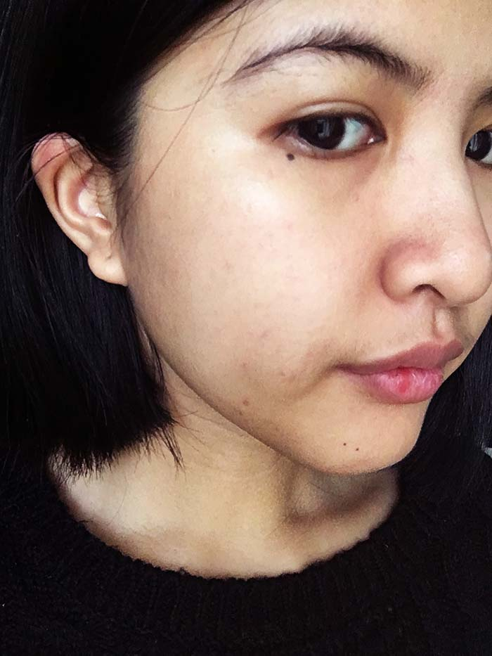 Biologique Recherche P50T: The Miracle Skin Care Product | Wonder - Day 1