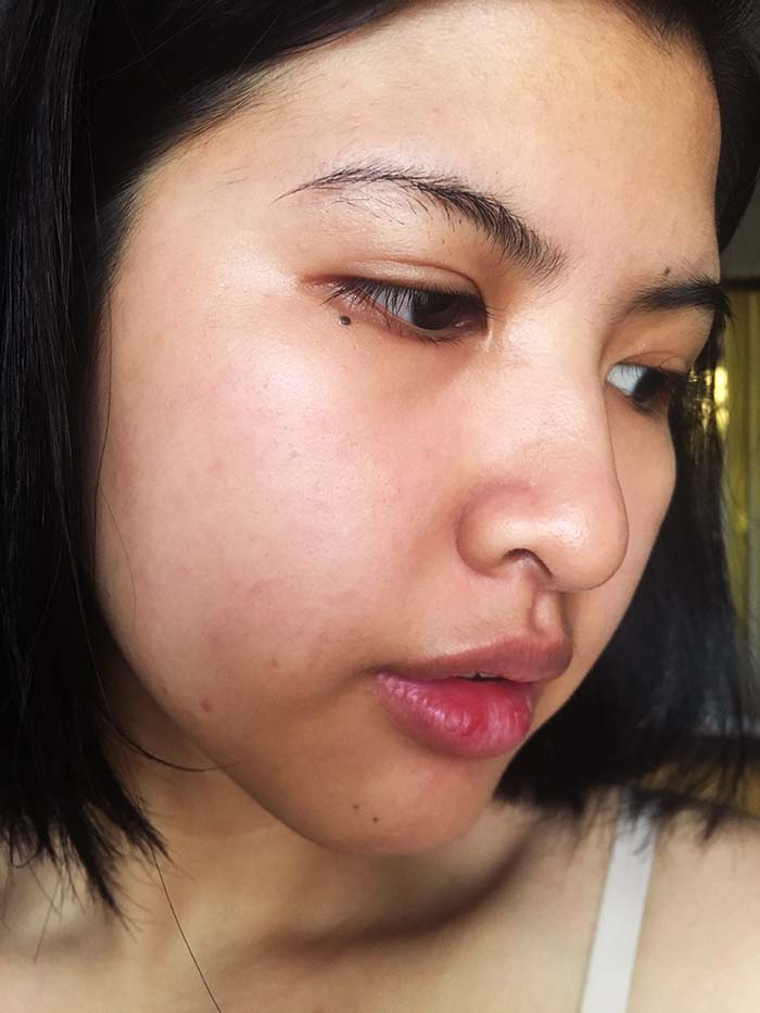 Biologique Recherche P50T: The Miracle Skin Care Product | Wonder - Day 3
